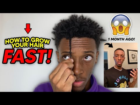 How To GROW Your HAIR FASTER!!   FAST & EASY!