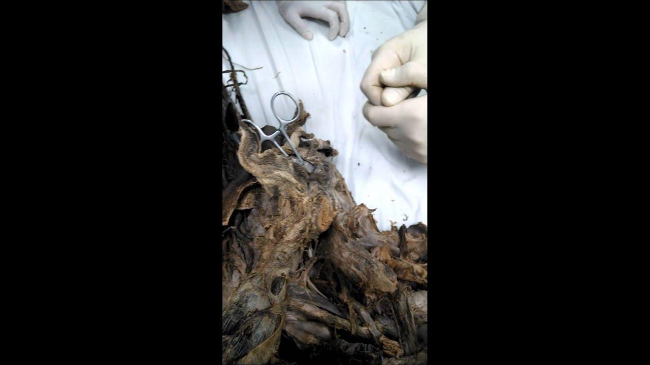 diafragma Urogenital - YouTube