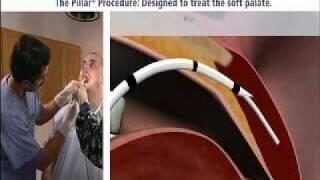 Pillar Procedure - Stop Snoring and Sleep Better