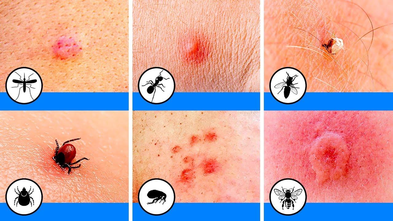 10 Picaduras De Insectos Que Debes Poder Identificar