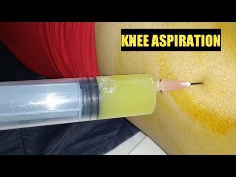 Knee Aspiration 2019 ! Arthrocentesis ! #drtusarofficial