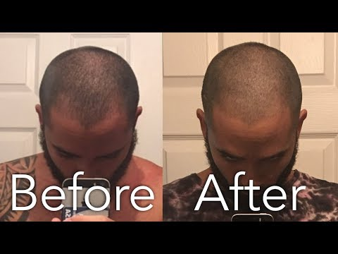 How I Stopped My Hair loss Naturally