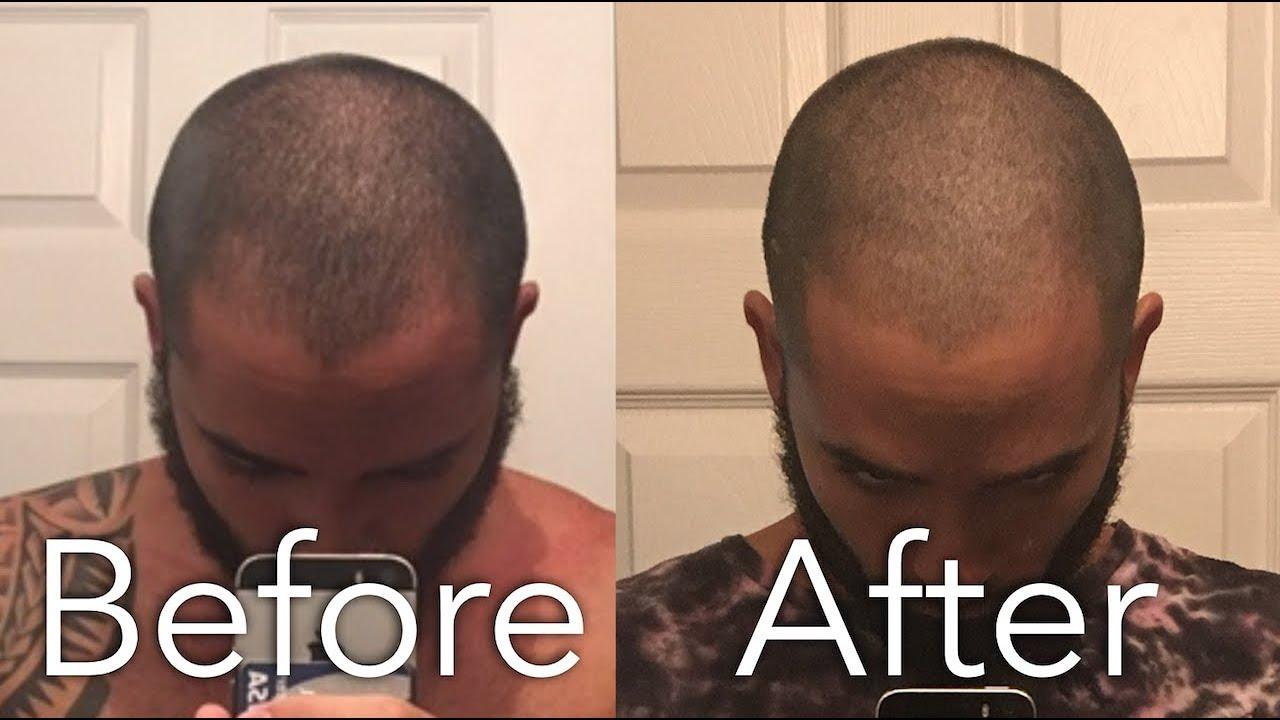 Hair Loss And Nofap