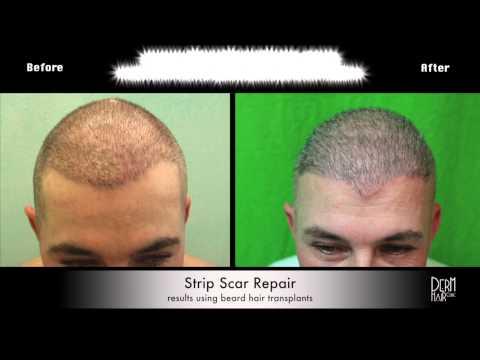Correcting Strip Scar With Body Hair at a Santa Monica Clinic