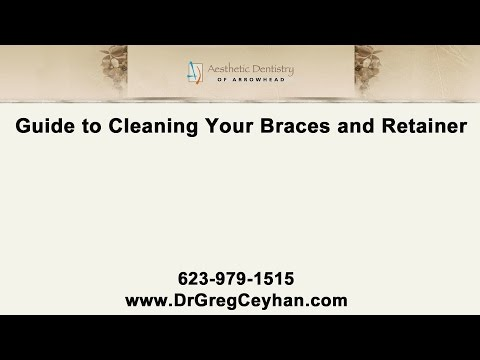 Guide To Cleaning Your Braces & Retainer By Our Glendale Dentist