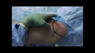 Labral repair surgery, explained by Ohio State Sports Medicine