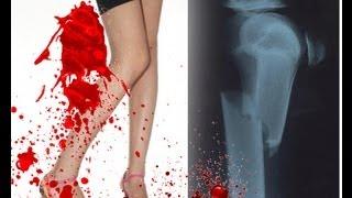 How to break your leg (Tutorial)