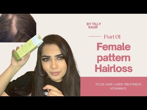 Female Hairloss in my 20's, My story