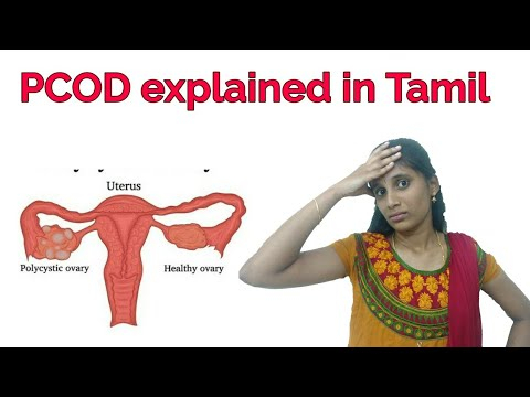 pcod-explained-in-tamil indru-oru-information 