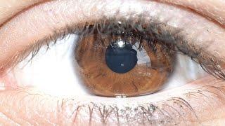 Provoca os inchaço olhos sob vermelhidão