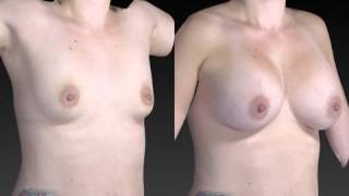 Breast Enhancement 3D Before and After-52
