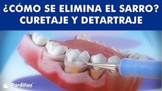 Tratamiento de la Periodontitis - Curetaje y Detartraje ©