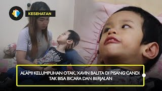 Tazkiya, di usia 3 tahun harus menderita penyakit gangguan saraf langka, lumpuh otak, dan infeksi pa.