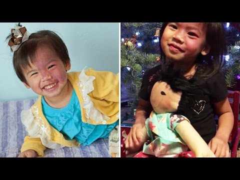 Thumbnail: Girl With Rare Birthmark On Face Gets Special Doll That Looks Just Like Her