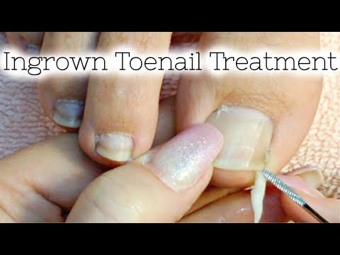 👣 Pedicure Tutorial Ingrown Toenail Treatment At Home How to Recut Nail Groove to Eliminate Pain