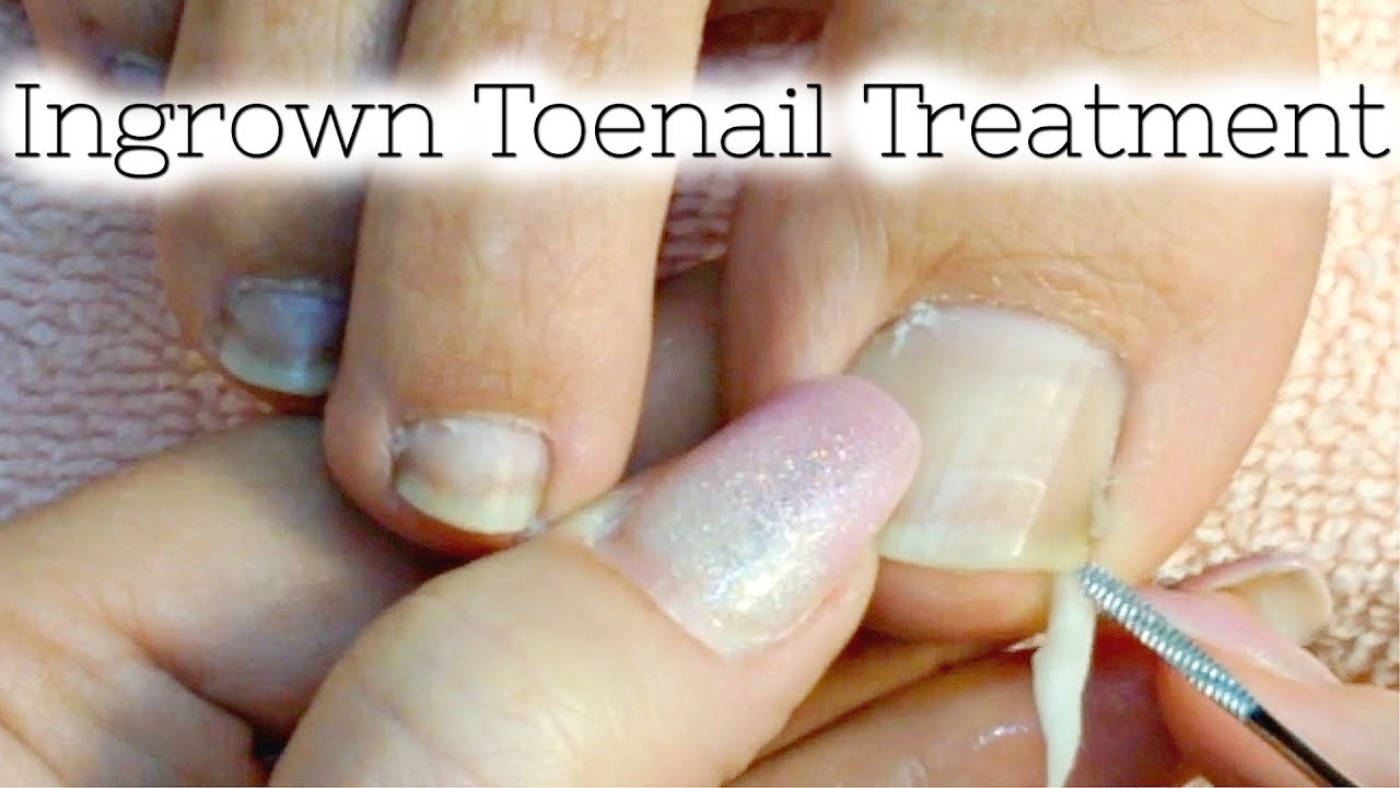 Pedicure Tutorial Ingrown Toenail Treatment At Home How To Recut Nail Groove To Eliminate Pain