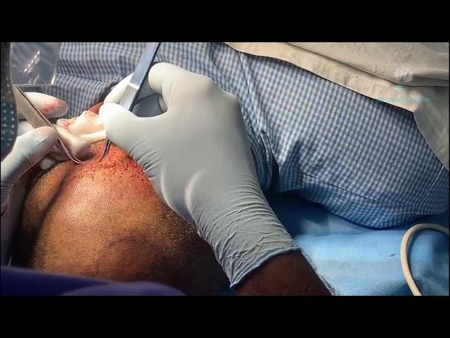 Advance Hair Graft Transplantation