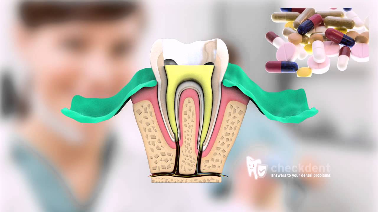 Pulpotomy Root Canal | Aurora Pediatric Dentist