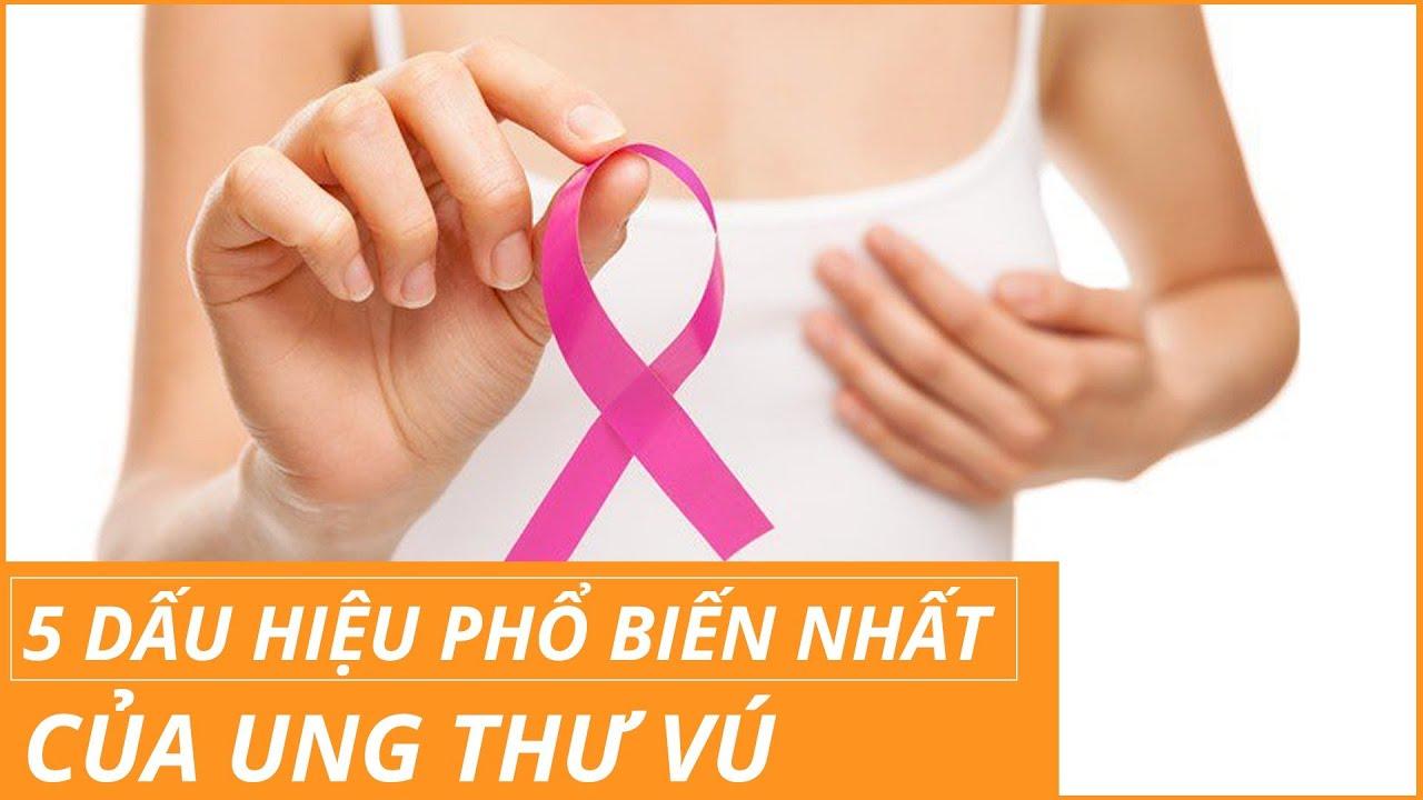 5 dấu hiệu ung thư vú chị em nào cũng cần biết| BS Lã Thị Tiềm, BV Vinmec Times City