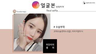 [얼굴본 REAL SELFIE]코재수술(콧대+코끝), …
