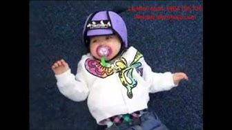 Mũ bảo vệ đầu cho bé tập đi thudguard