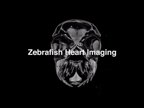 Zebrafish Heart Imaging