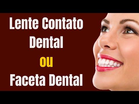 Qual a Diferença entre Faceta e Lente de Contato Dental | Dr Paulo Coelho