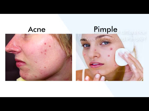Difference Between Acne And Pimple - Manipal Hospitals