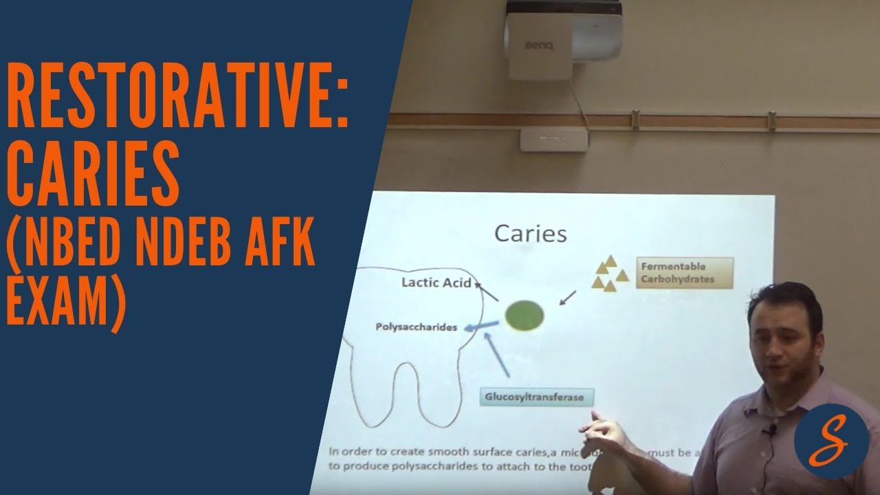 Restorative: Caries (NBED NDEB AFK Exam)