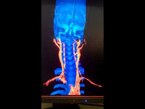 Ct ANGIOGRAPHY OF HEAD AND NECK VESSELS.