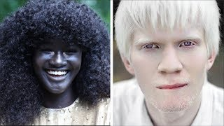 Persilangan Albino | GENETIKA MANUSIA.