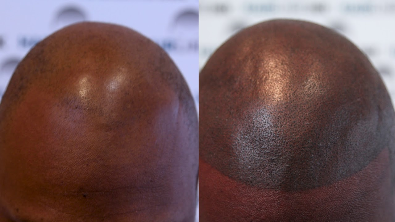 hair loss solution for black men using cosmetic tattoo