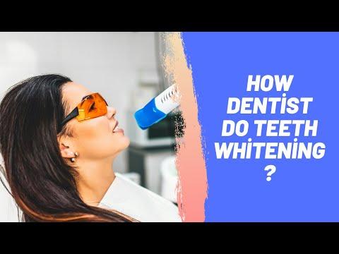 How Dentist Do Teeth Whitening?