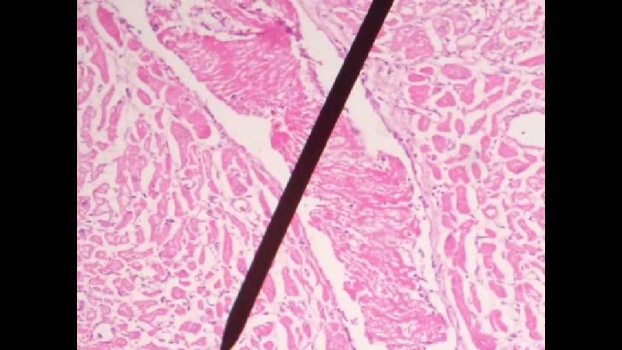 Infarto agudo do miocardio patologia