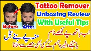 How To Remove Tattoo From Your Skin Tattoo Remover Urdu Hindi With Prof