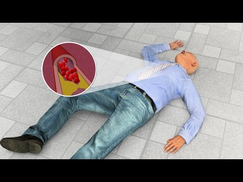 First Aid - Heart Attack and Cardiac Arrest