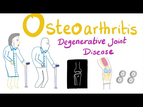 Osteoarthritis (OA) Part 1: Introduction