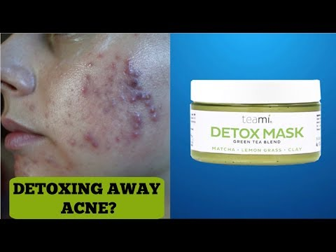I TRIED A DETOX MASK FOR A WEEK FOR MY ACNE || THIS IS WHAT HAPPENED.. Teamiblends Detox Mask