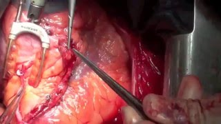 Off Pump Coronary Artery Bypass Grafting (OPCAB)