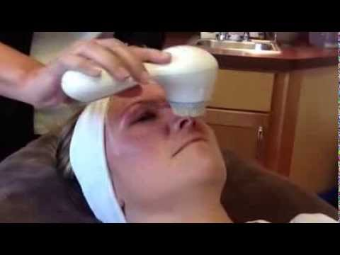 Columbia Laser Skin Center - Clarisonic