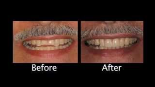 Cosmetic Dentistry Northridge | The Importance Of Function Thumbnail