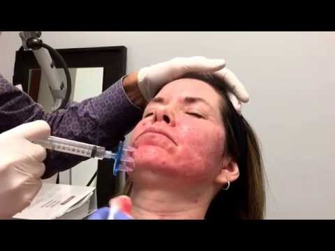 Dr Weiner's Superficial Skin Block to Numb Face - Infini/Laser
