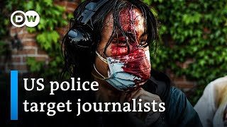 More than 100 attacks on journalists by US police during George Floyd protests | DW News