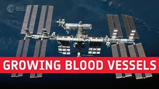 Research in space for health: growing blood vessels