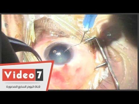 بالفيديو شاهد عملية إزالة المياه البيضاء من العين