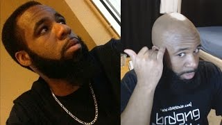 Video Going Bald At A Young Age & How To Reverse It! | Natural Male Pattern Baldness Cure? download MP3, 3GP, MP4, WEBM, AVI, FLV Agustus 2018