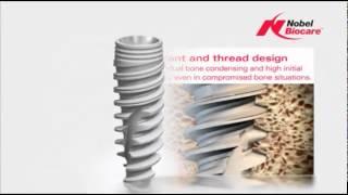 Зубные имплантаты Nobel Biocare, рекламный ролик.(Рекламный ролик демонстрирующий преимущества имплантационной системы Nobel Biocare., 2015-07-21T21:53:35.000Z)
