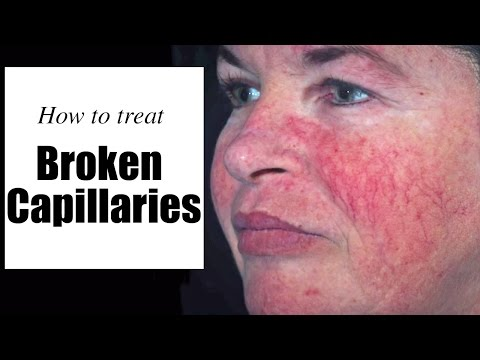 Rosacea Laser For Treatment Of Broken Capillaries And Facial