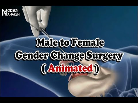 Female to male sex change surgery