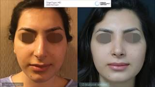 Rhinoplasty Before After - 12  Days Result - Ozge Ergun MD, Aesthetic Plastic Surgeon